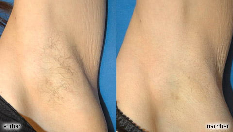 Armpits (before / after)
