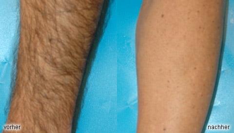Ноги (до / после)