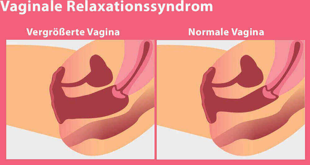 Vaginales Relaxationssyndrom mit dem Juliet Laser behandeln